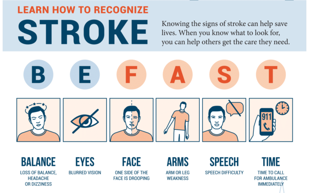 How to recognize the signs of Stroke (infographic)
