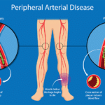 Peripheral Arterial Disease: An under-recognized, slow-burning emergency