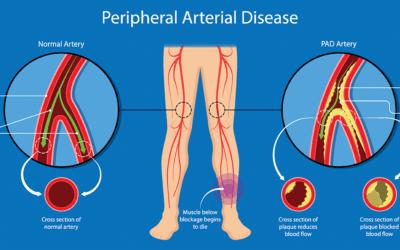 Peripheral Arterial Disease: An under-recognized, slow-burning emergency