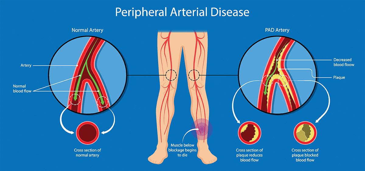 Peripheral Arterial Disease: An under-recognized, slow-burning emergency |  Appalachian Regional Healthcare System