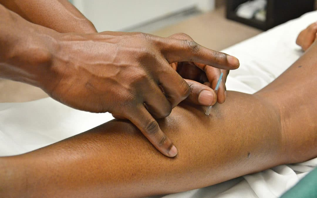 Dry needling therapy to increase muscle function and reduce pain